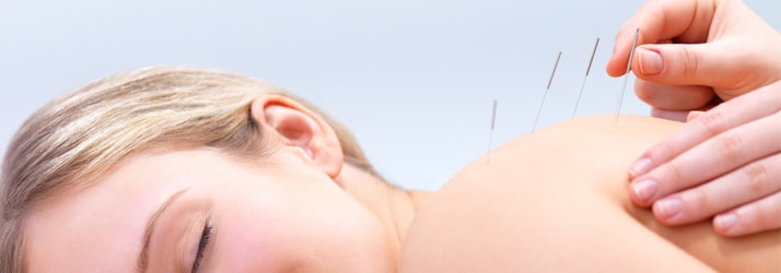 acupuncture in st. paul mn